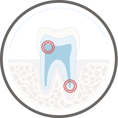 Zahnarzt Köln - Wurzelbehandlung