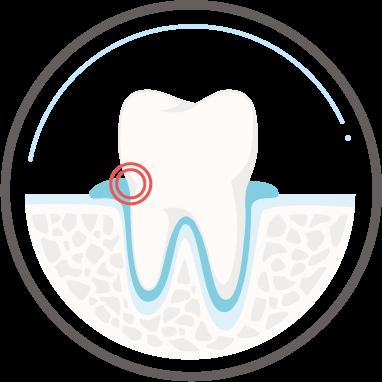 Zahnarzt Köln - Parodontologie