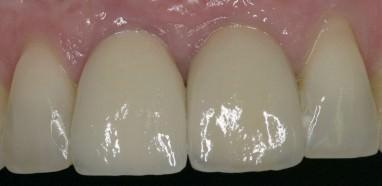 Implantat-Einzelkronen