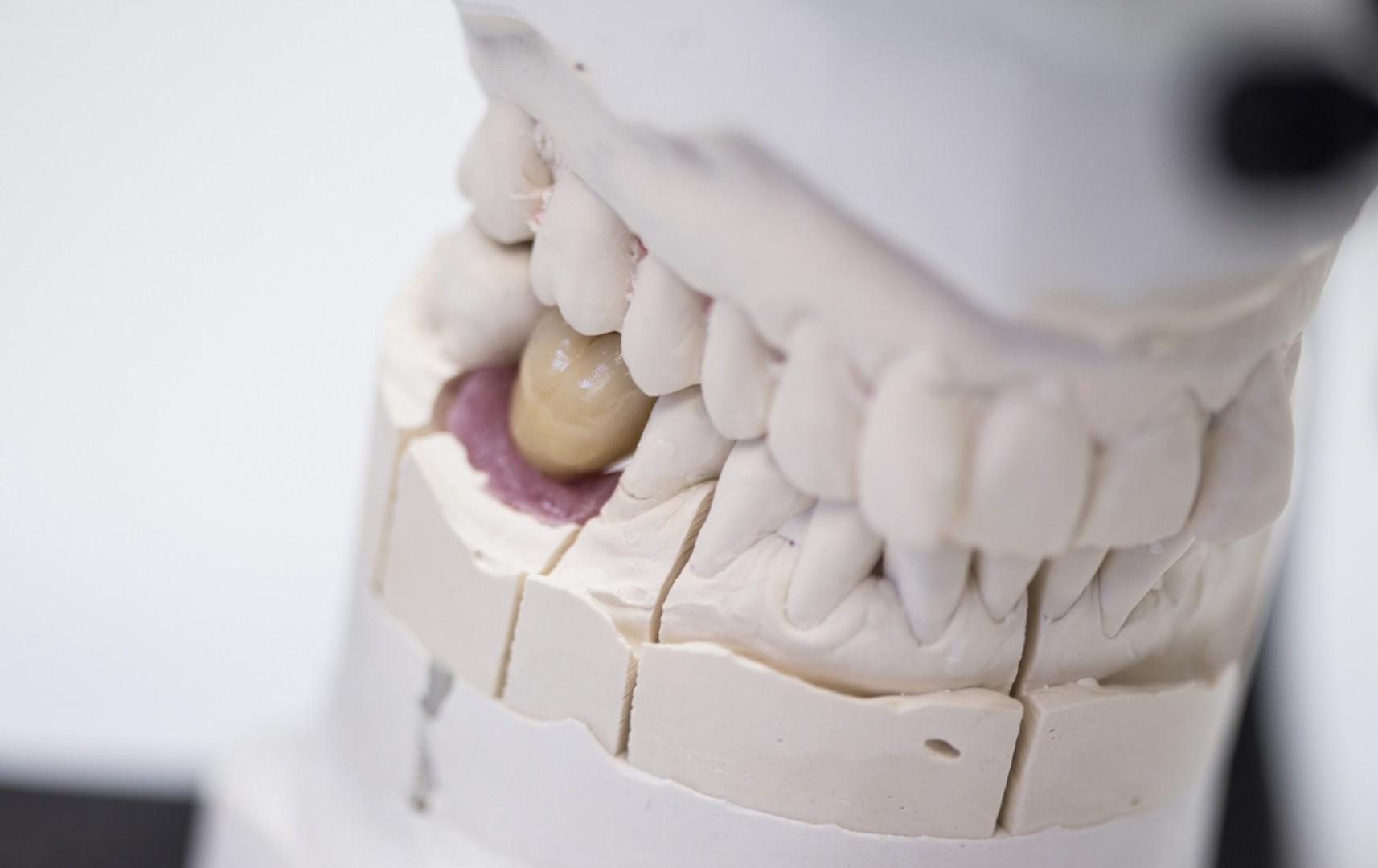 Detailaufnahme eines ersetzten Zahnes im Kiefermodell
