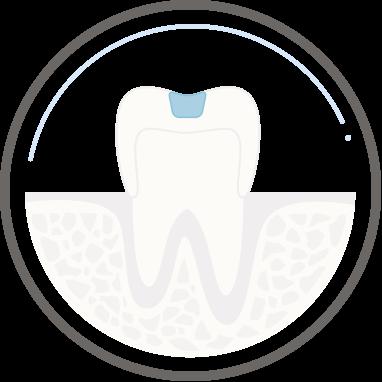 Zahnarzt Köln - Zahnerhaltung
