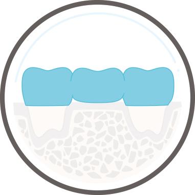Zahnarzt Köln - Zahnersatz