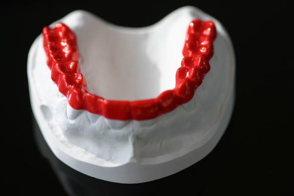 Bruxchecker zur Untersuchung von Zähneknirschen bei Ihrem Zahnarzt in Köln