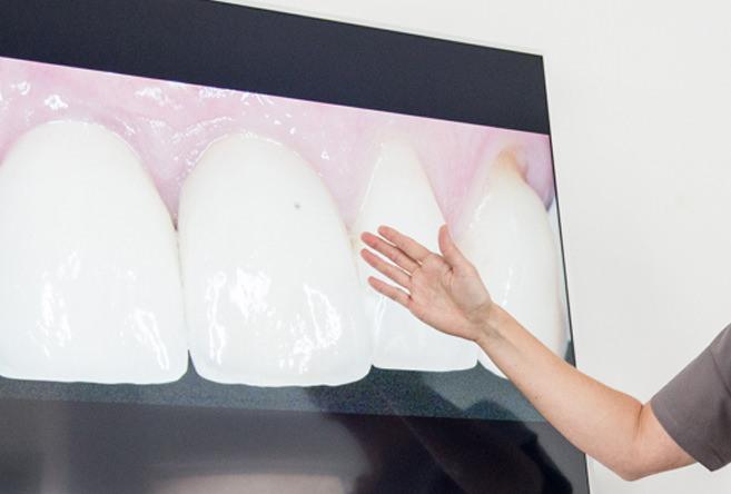 Zahnkultur Köln: Ärztin zeigt auf Zahnaufnahme