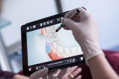 Zahnarzt Köln - In der Zahnarztpraxis Zahnkultur in Köln erhalten Patienten konkrete Anleitungen zum Zähneputzen