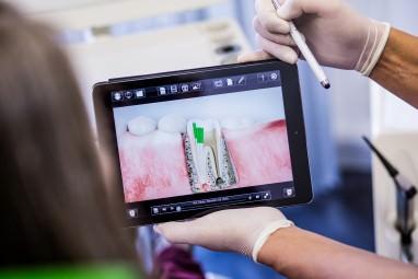 Wurzelbehandlung Köln: So behandeln unsere Zahnärzte entzündete Zahnwurzeln
