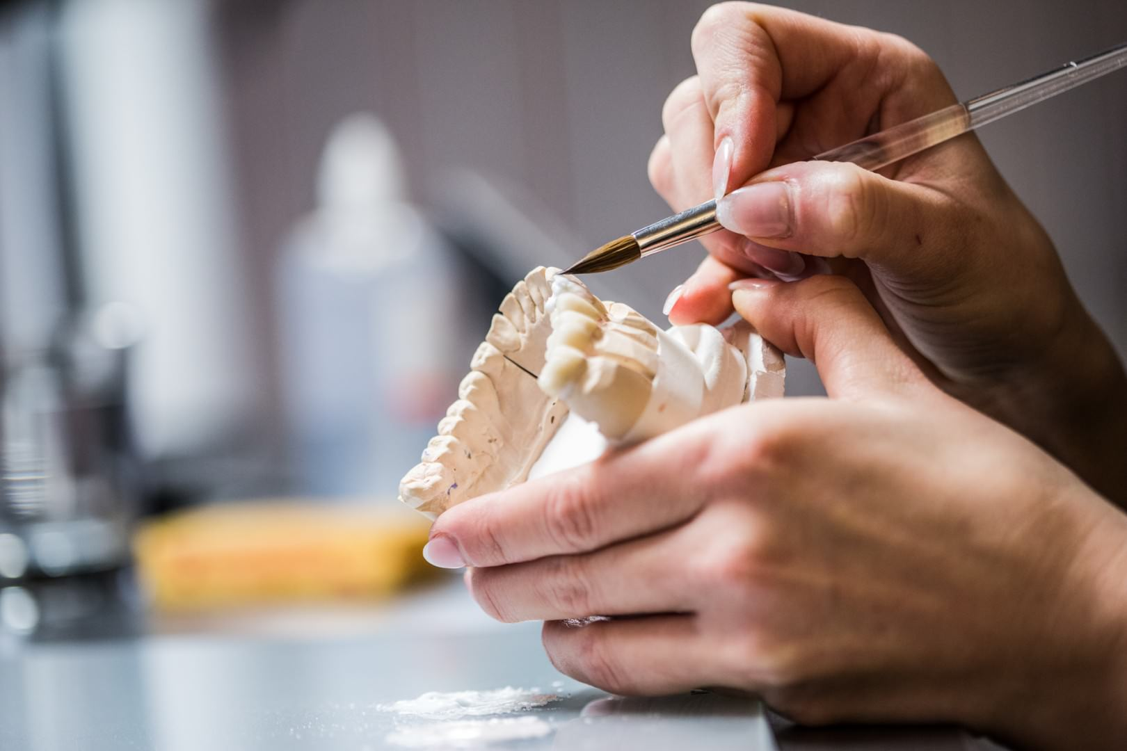Zahnkultur Köln: Herstellung von Zahnersatz