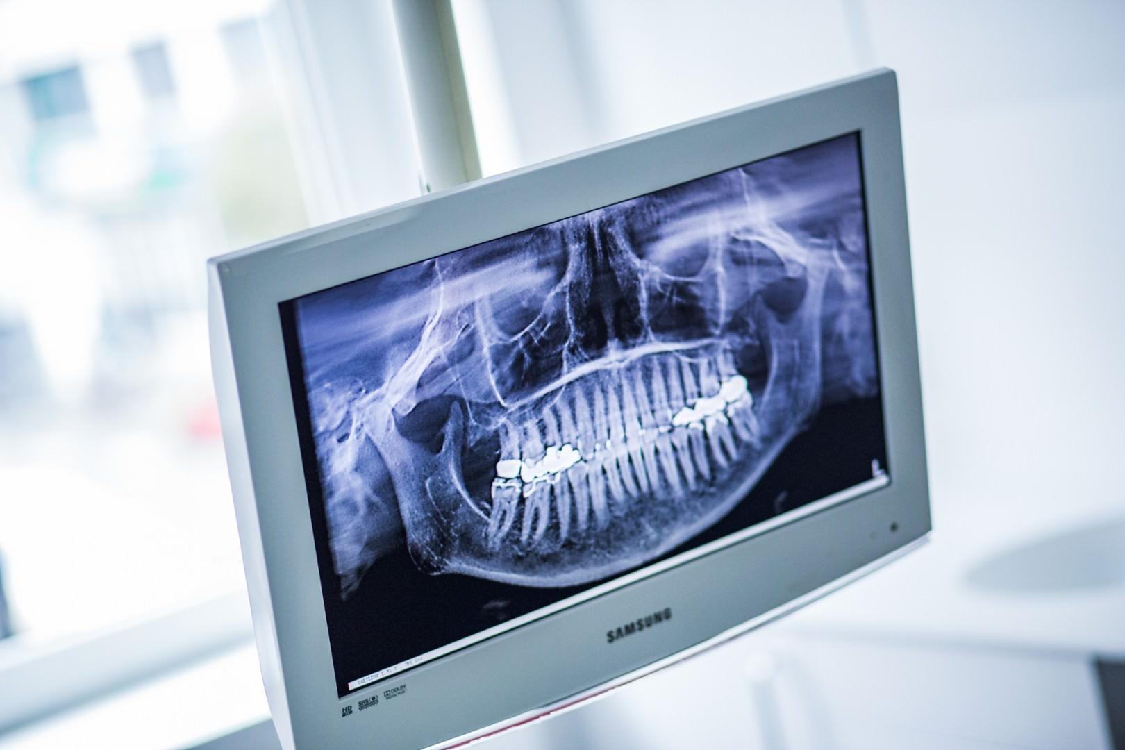 Röntgenaufnahme eines Kiefers auf Monitor in einer Zahnarztpraxis in Köln