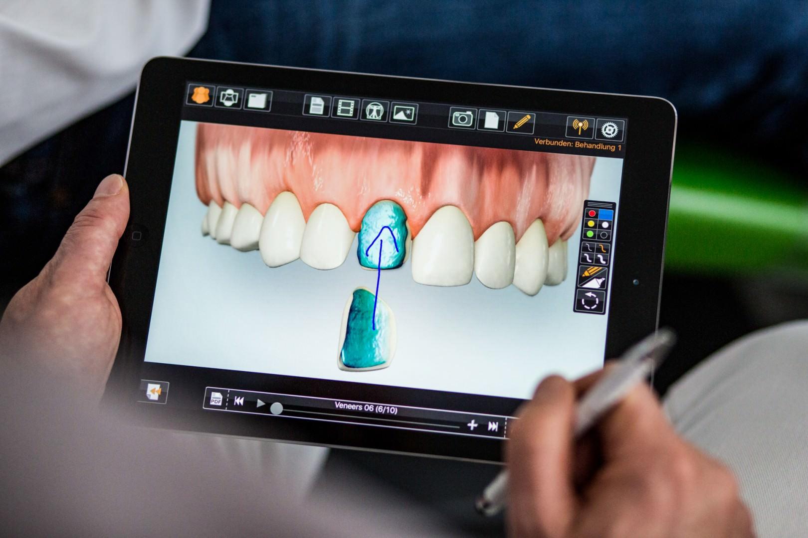 Zahnkultur Köln: Patient hält Animation in der Hand