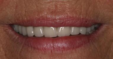 Natürliche Ästhetik und fester Biss auch bei Zahnlosigkeit