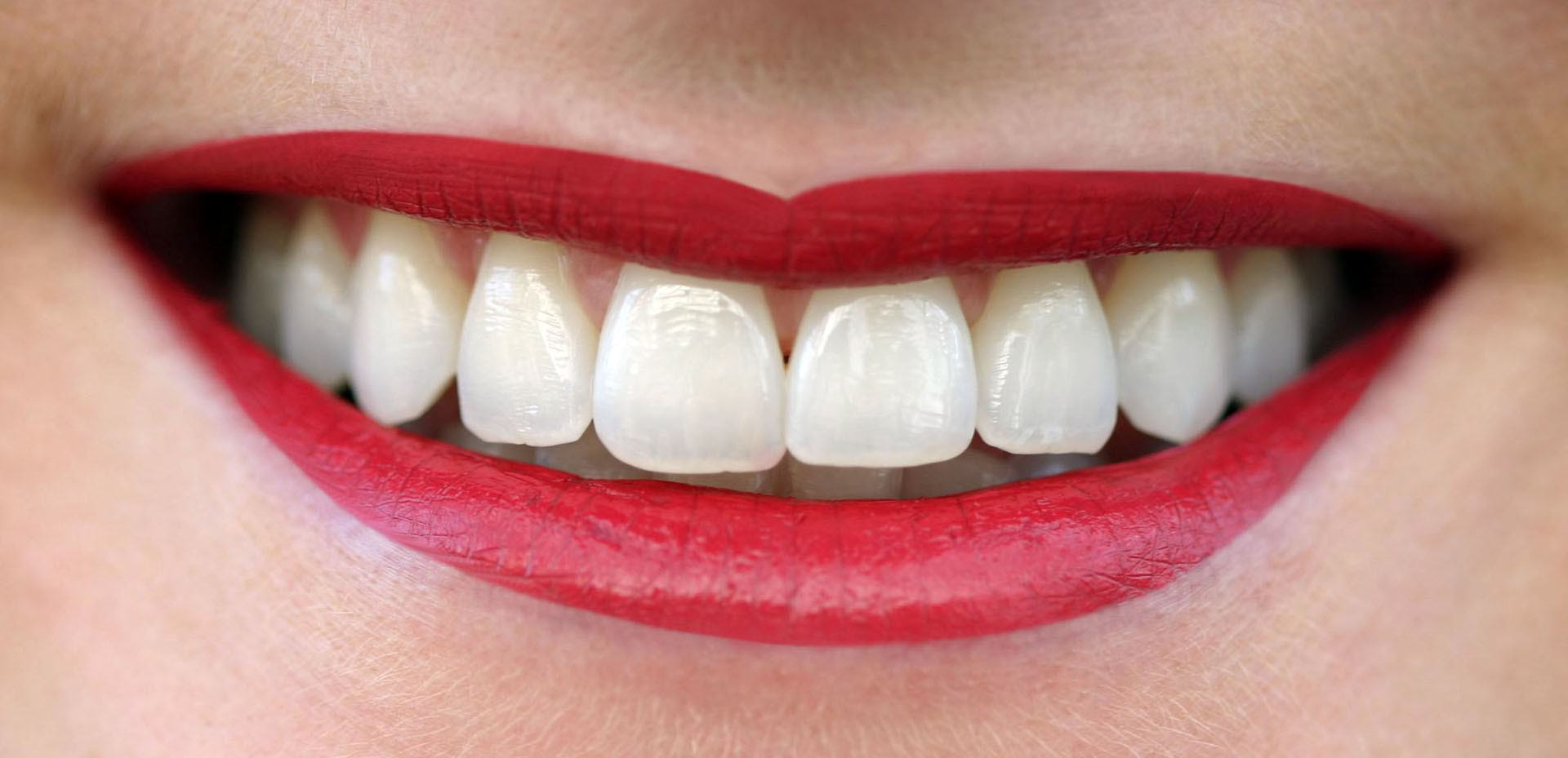 Zahnkultur Köln - Ein strahlendes Lächeln