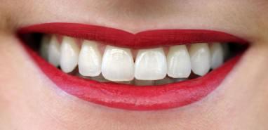 Zahnkultur Köln: Perfekte Zähne