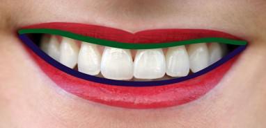 Zahnkultur Köln: Ein harmonischerZahnfleischverlauf