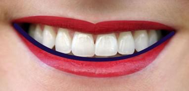 Zahnkultur Köln: Die perfekte Zahnlänge