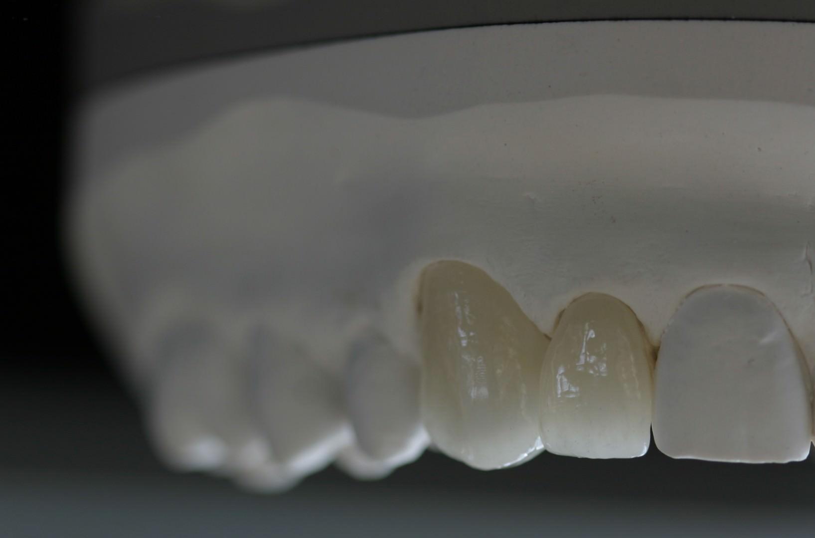 Nahaufnahme eines Modells mit Zahnersatz im Oberkiefer