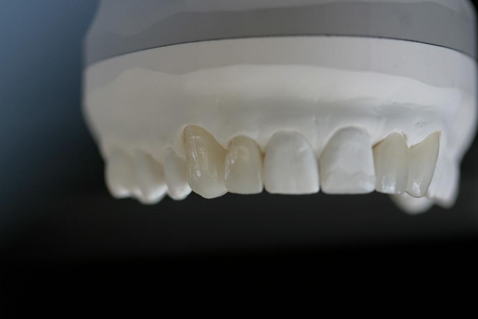 weißes Modell eines Oberkiefers mit Zahnersatz
