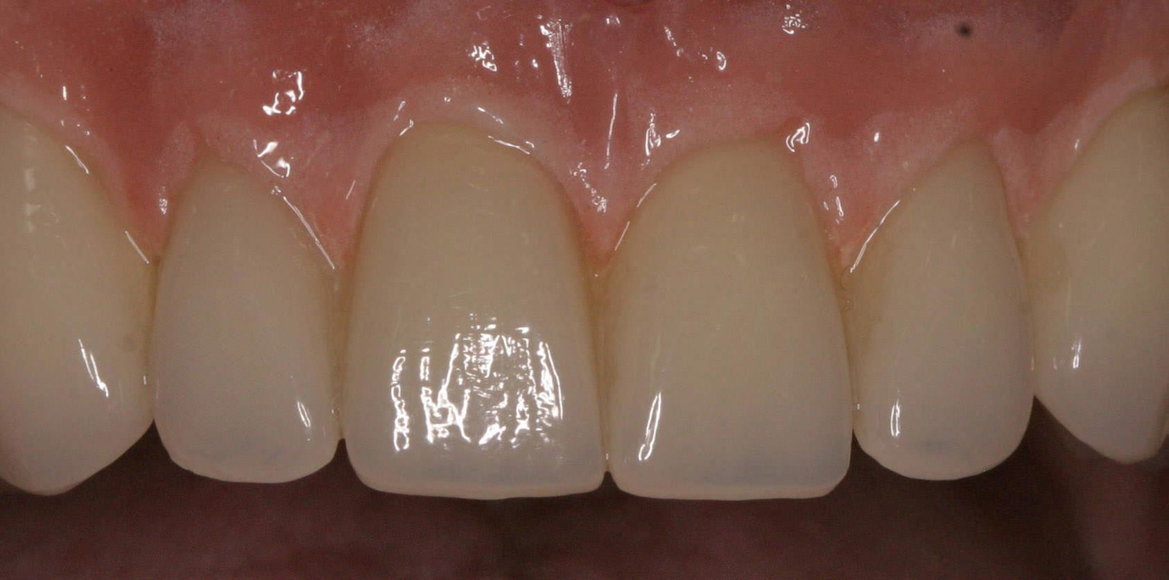 Perfekter provisorischer Zahnersatz
