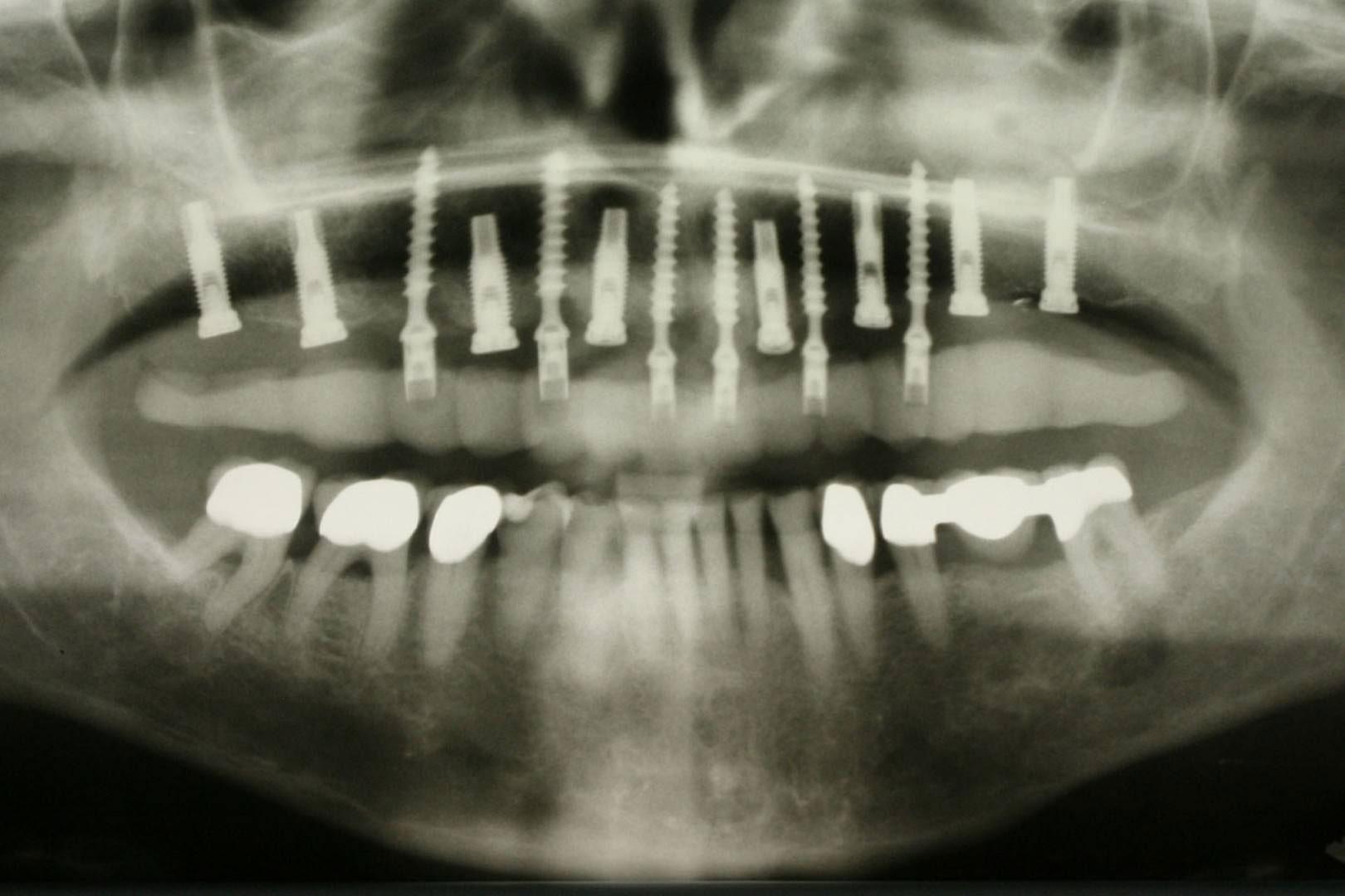 Röntgenaufnahme eines Kiefers mit Implantaten